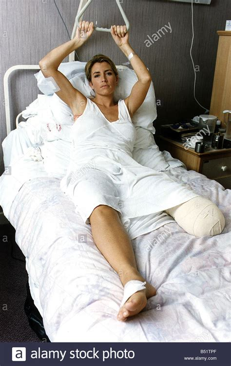 Heather Mills Model Who lost her leg in road accident
