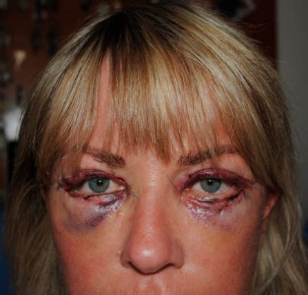 1 day post-op, Eyelid Surgery, Blepharoplasty, Pictures