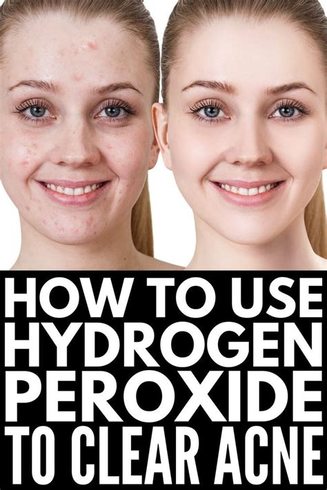 Miracle Cleaner: 18 Hydrogen Peroxide Uses and Benefits