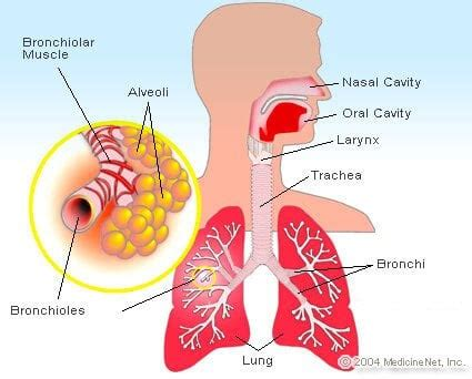 What Is Bronchiectasis? Symptoms, Causes, and Treatment