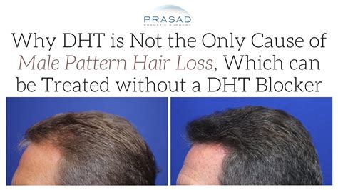 Hair Loss Treatment: PRP is Not a DHT Blocker, but DHT is