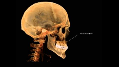 Related Keywords & Suggestions for maxillary spine anatomy